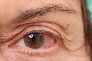 Allergic Conjunctivitis Shutterstock 49002922
