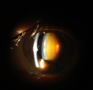 Cataract picture